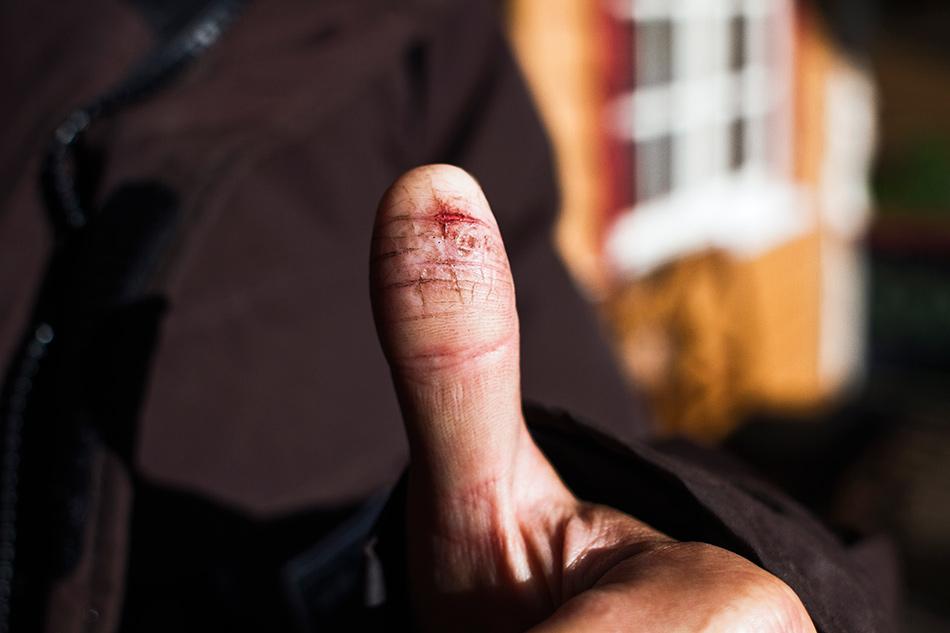 Unge T og fingrane hasses. Foto: Anders Thormodsæter
